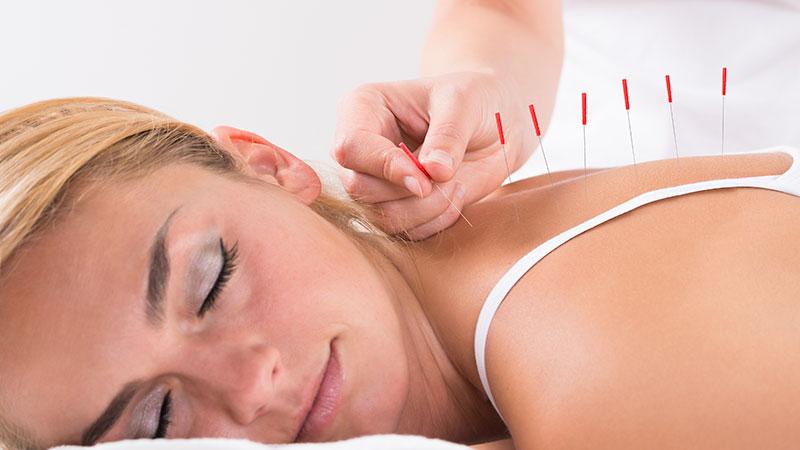 Médecine traditionnelle chinoise et acupuncture